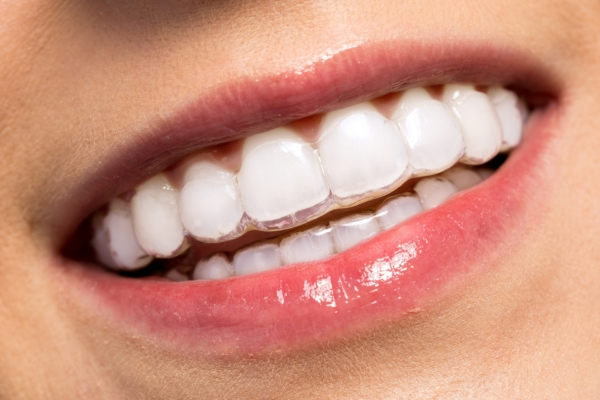 Invisalign | Invisible Clear Aligners | Adult Braces